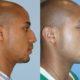 Paquetes de Cirugia Plastica en Colombia | Cirugia Plastica Medellin | Cirugia Plastica para Hombres