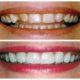 Odontologo en Medellin | 444-4801 | Ortodoncia Medellin