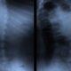 Centro Quiropractico en Medellin   448-9986   Tratamientos para el dolor de espalda y cuello